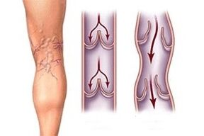 Outflow of blood with varicose veins at different stages of the development of the disease.