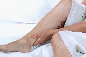 causes and symptoms of varicose veins in the legs