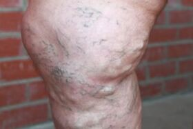 possible complications of advanced varicose veins in the legs